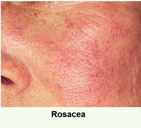 érzékeny bőr, bőrpír, érzékenység, rosacea, cuperosa, lángoló bőr, bőrnyugtatás, érzékeny bőrre